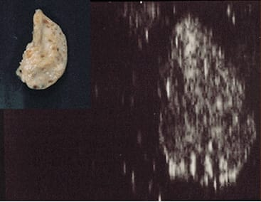 Inactive smooth ovary and its ultrasound picture.