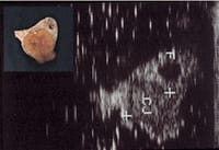 Ovary with corpus luteum and its ultrasound image.